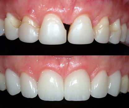 Carillas-dentales-antes