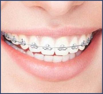 ortodoncia_03